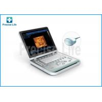 China Laptop Ultrasonic Scanner Medical Ultrasound Machine With 4D Image wholesale