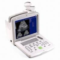 China B-Ultrasound Hospital Equipment with Automatic Report Generation and Automatic Probe Identification wholesale