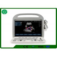 China Automatic Fetal Color Doppler Ultrasound , Digital Ultrasound Scanner Winder Angle wholesale