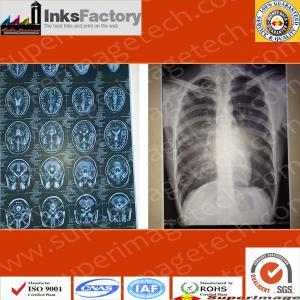 China Medica X-Tray Films/Hospital Cr, Dr, MRI, CT, Dsa Films on sale