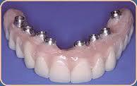 China Flexible Dental Implant Prosthetics With Perfect Fit For Removable Teeth Restorations wholesale