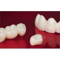 China Full / Solid Dental Zirconia Crowns Restorations With CAD / CAM of Dental Laboratory wholesale