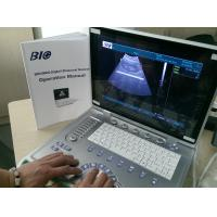 China PC Based B / W Portable Ultrasound Scanner 15 inch Laptop Screen Only 5kgs Weight Convenient to Carry wholesale
