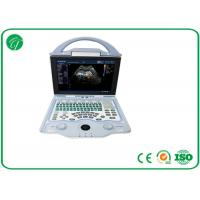 China Full Digital Doppler Ultrasound Machine Multi - Frequency Probe With A8 Embedded System wholesale