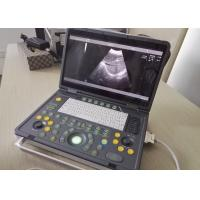 China Portable Pregnancy Ultrasound Scanner with Abdominal Convex Transvaginal Transducers wholesale