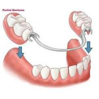 China Superior Restoration Effect of Removable Partial Denture With Custom Shade Porcelain teeth wholesale