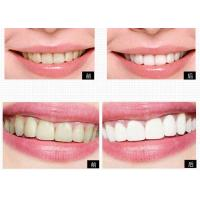 China Private Logo Personal Care Products Tooth Bleaching System For Home Teeth Whitening on sale