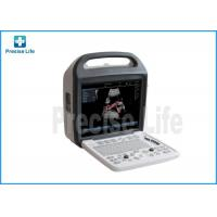 China 3D/4D Color Ultrasound System Ultrasonic Color Image Doppler Scanner wholesale
