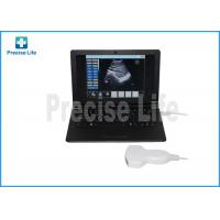 China B type portable Hospital Medical Ultrasound Machine Laptop PC base wholesale