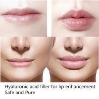 China New Sexy Fuller Lips Injection of Hyaluronic Acid Filler Gel 2ml of Deep Kind wholesale
