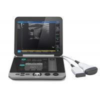 China Gray Color S880 Portable Ultrasound Scanner Patient Monitoring Devices wholesale