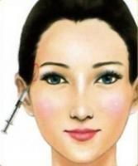 China China Juvederm Ultra 4 Anti-wrinkle/Cross linked Hyaluronic Acid Filler/Natual HA filler/Juvederm Ultra 4 HA filler wholesale