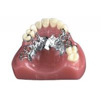 China INVISIBLE DENTURE(1) on sale